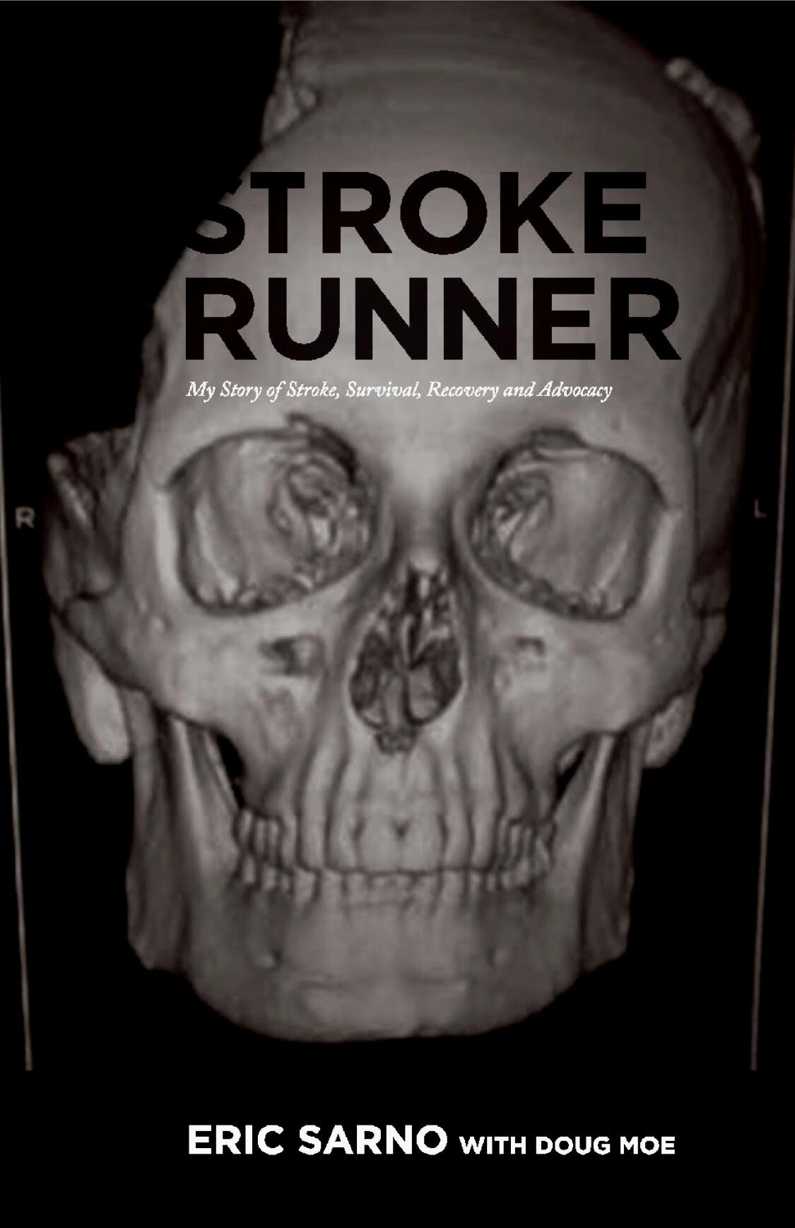 stroke runner book cover